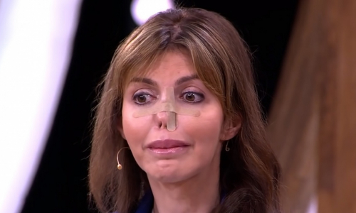 Алиса Аршавина: «Мне не хватает денег на пластику и становится все хуже»